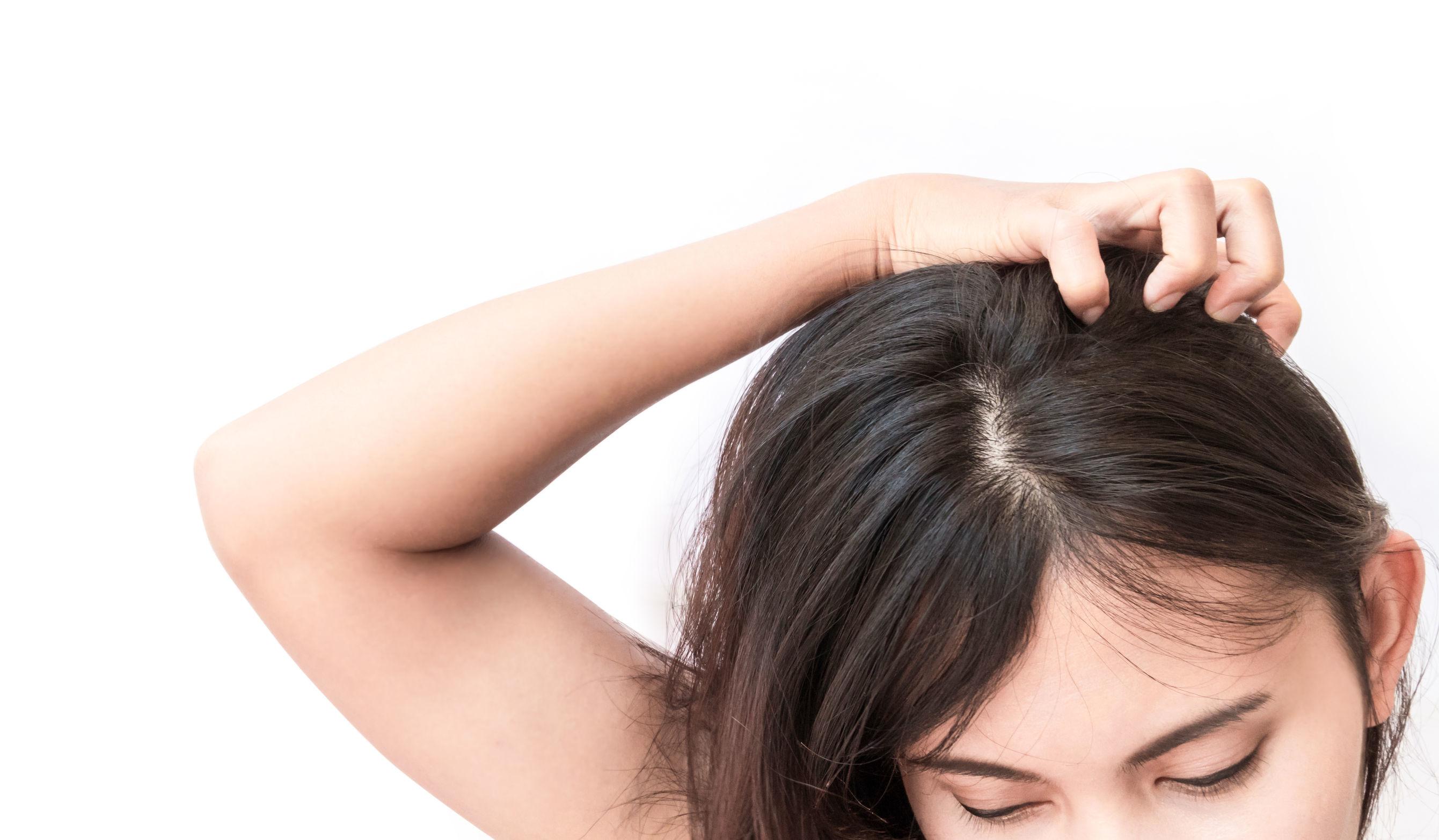 季節交替,過敏肌膚族群需小心脂漏性皮膚炎上身!