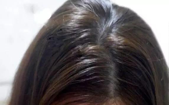 頭髮油頭皮也油?4招改善你的頭皮油田
