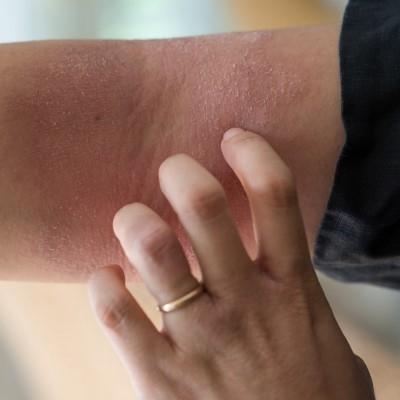 修復霜解決肌膚乾癢問題