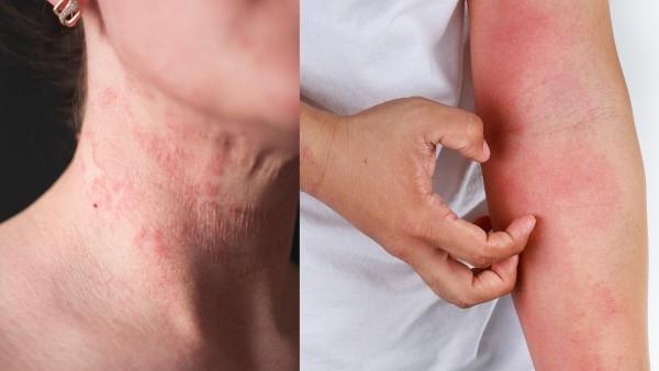 修復霜解決肌膚乾癢、泛紅問題