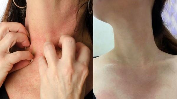修復霜解決胸口頸部肌膚乾癢、泛紅問題