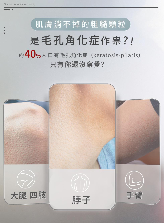 肌膚粗糙顆粒是毛孔角化症作祟?