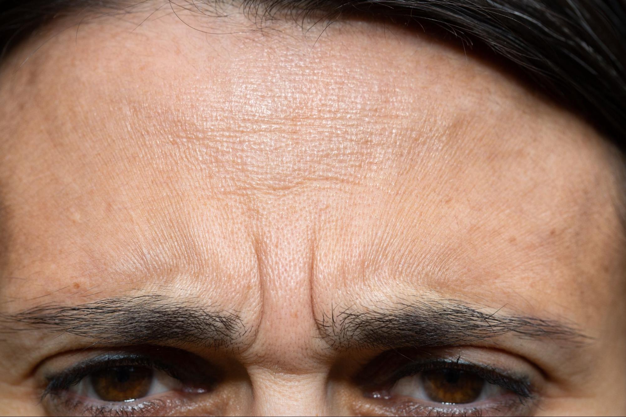 為什麼會有眉間紋?