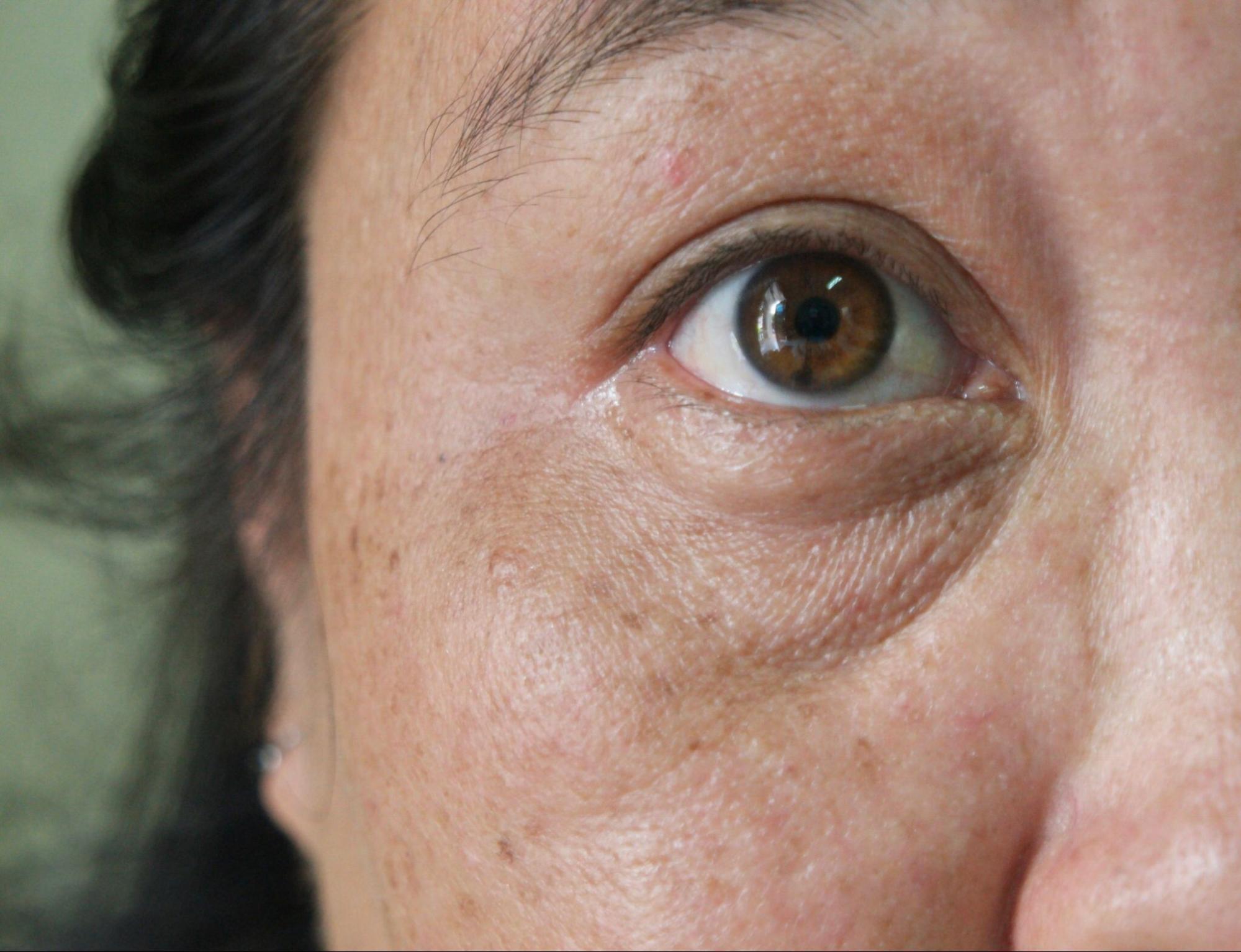 眼袋下方的皺紋是淚溝紋