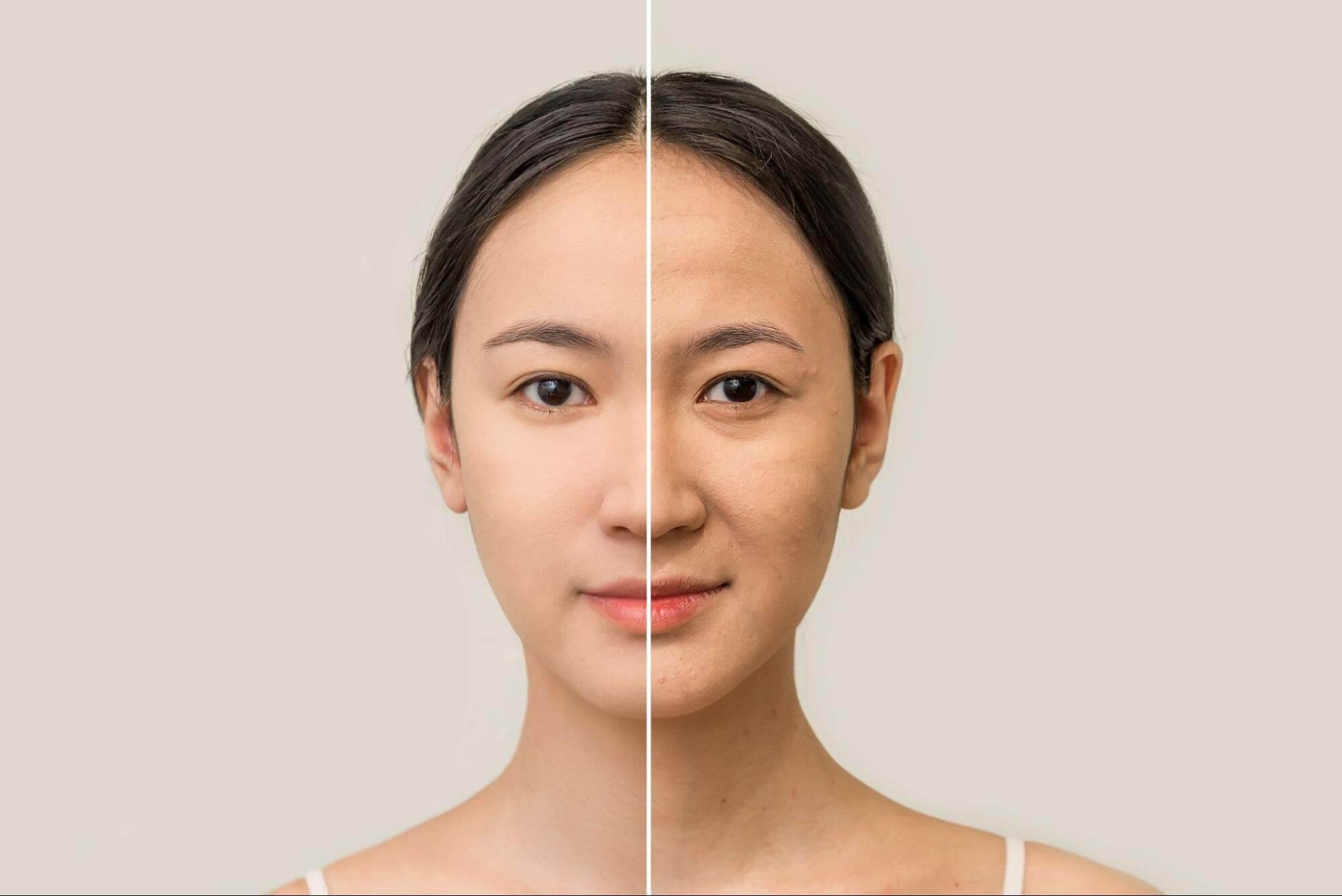 皮膚鬆弛改善前後示意圖